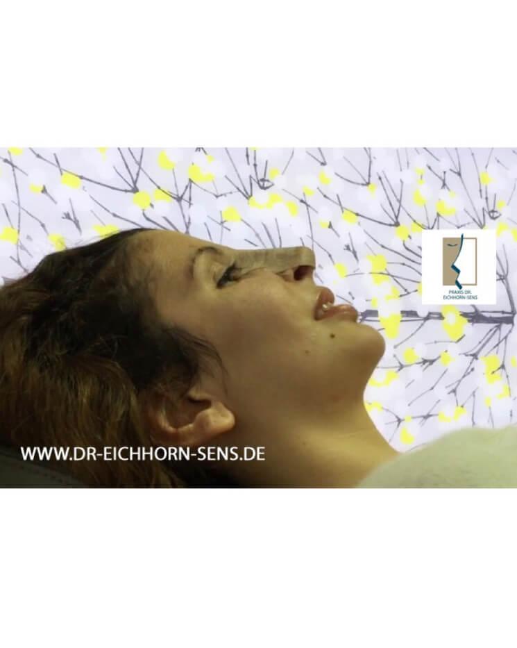 Durch Tapen nach der Rhinoplastik von Dr. Eichhorn-Sens läßt sich die Forn der Nase noch selbst beeinflussen